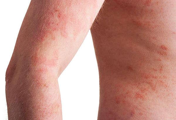 Procedimientos de Dermatología Clínica