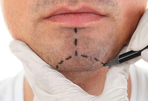 Implante de mentón